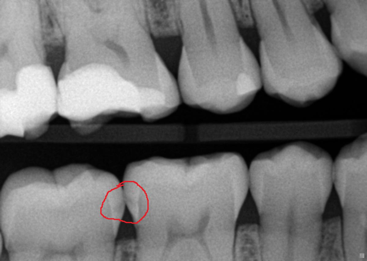 How many dental Xrays are too many  Healthy Debate