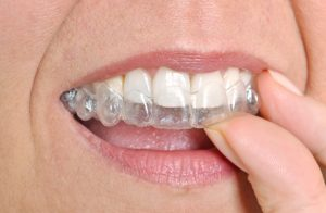 dentist in dublin provides invisalign