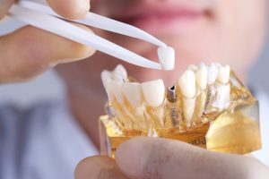 Your Dublin dentist wants to help restore the function of your smile.